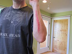 my forarm with a nice scrape after brushing a tree mountain biking
